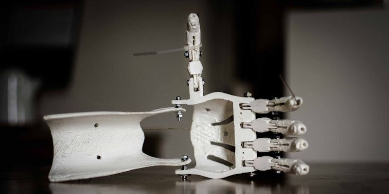 uses of 3d printing in prosthetics