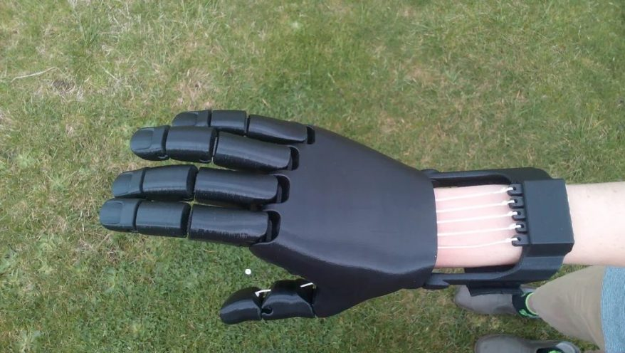 3D printed prosthetic hand project