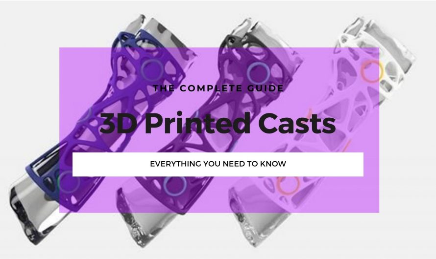 How 3D Printed Casts Are Fixing Our Broken Systems